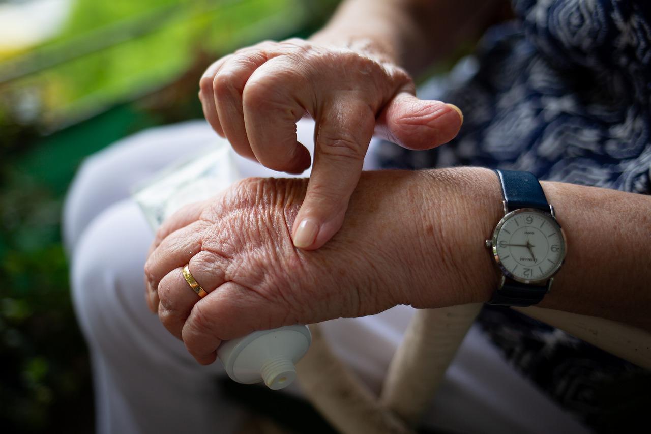 Tips to Manage Arthritis